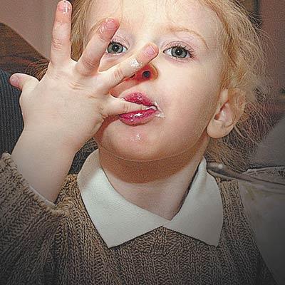 виды глистов у человека фото эхинококк